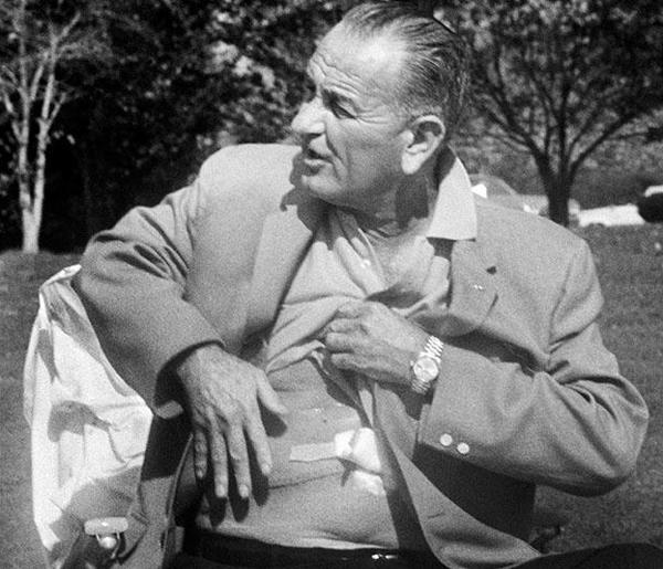 Lyndon B. Johnson's gallbladder scar – Hottest Heads of State